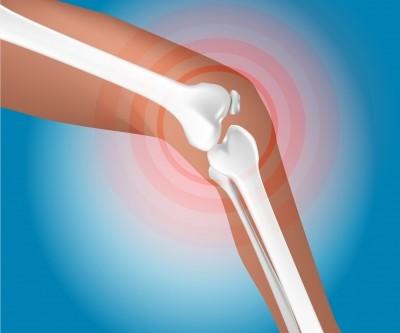 Imagen de rodilla dolorida