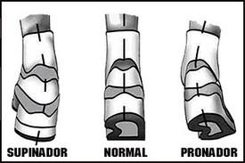 Tipos de pisada: normal, pronador, supinador