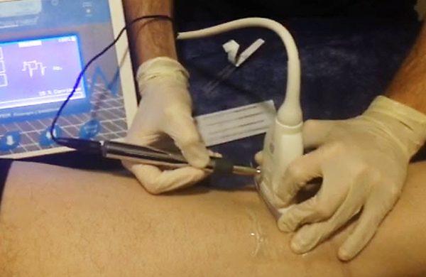 Neuromodulación en el nervio peroneo común. Mira el vídeo...