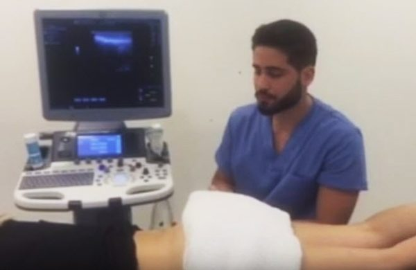 Neuromodulación del choque femoro-acetabular. Voy a presentaros otro caso práctico de esta técnica de NeuroModulación Percutánea. para que compruebes por tí mismo su eficacia.