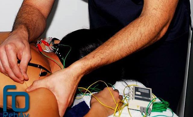 Neuromodulación: fisioterapia poco invasiva y eficaz. La neuromodulación percutánea ecoguiada (NMP) y la electroneuroacupuntura se posicionan como grandes herramientas mínimamente invasivas en fisioterapia frente a patologías que implican síntomas de dolor.